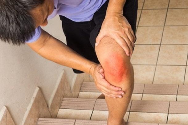 Knieschmerzen durch Arthritis