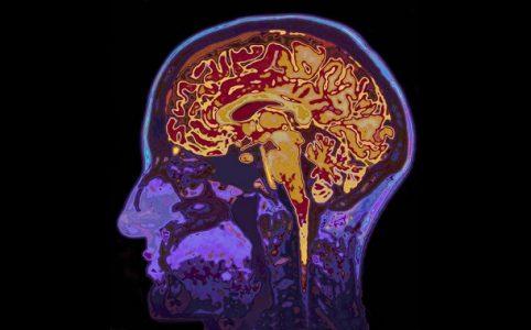 Gehirn in MRT Scan